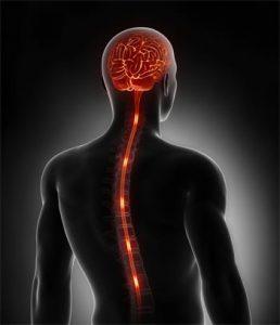 sclerose-en-plaque